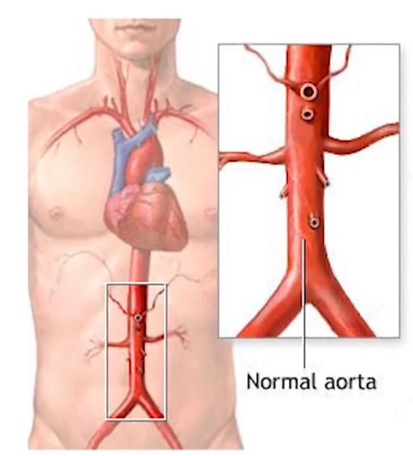 Aorta diagram