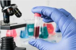 A blue glove is holding a blood test up to the camera, in the background is a microscope against a white wall.