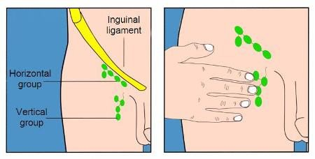 Checking your lymph nodes in the groin