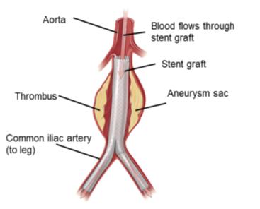 Diagram of EVAR