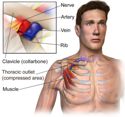 Diagram of Thoracic outlet syndrome