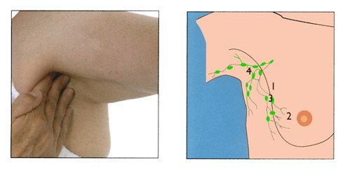 How to check lymph nodes in the armpit