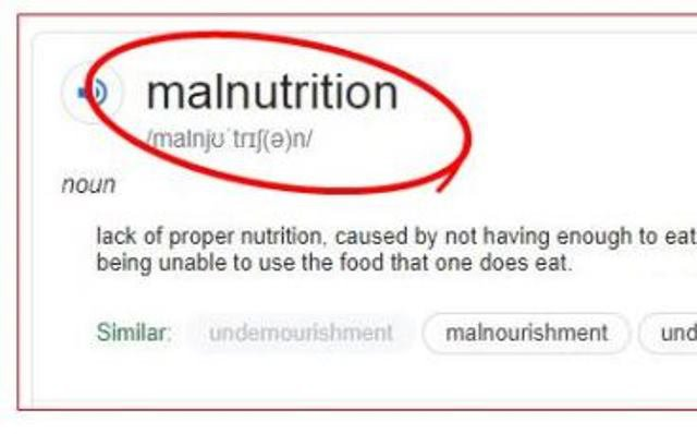 Malnutrition (noun): Lack of proper nutrition, caused by not having enough to eat and being unable to use the food that one does eat.