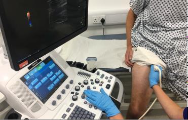 Ultrasound scan of leg veins