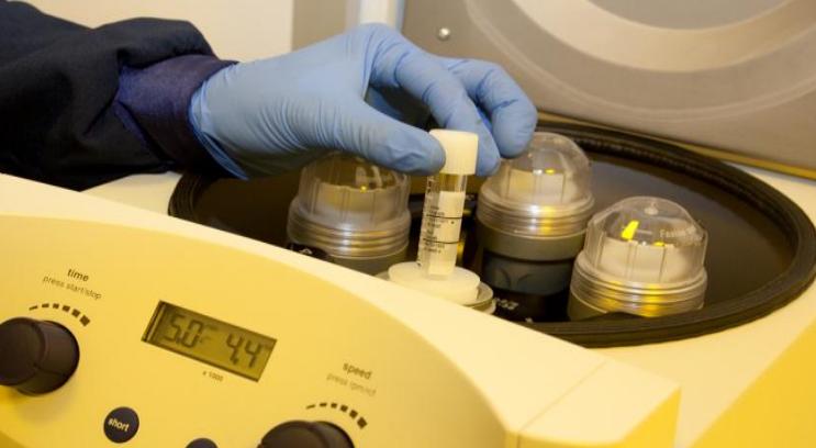 Semen analysis at Cambridge IVF