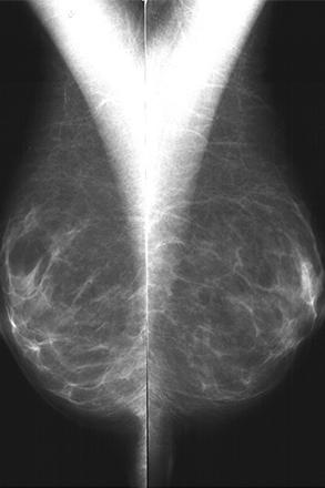 breast unit